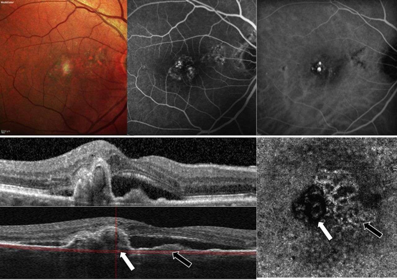 Image result for Polypoidal Choroidal Vasculopathy Upon Optical Coherence Tomographic Angiography