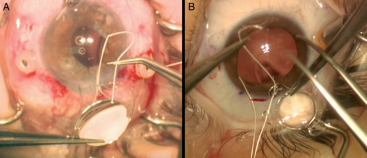 scleral fixation of intraocular lenses using gore