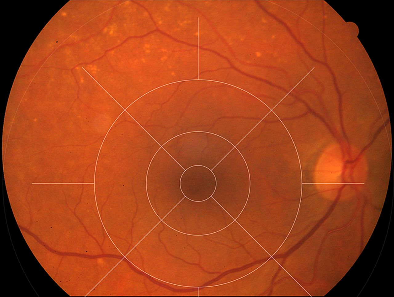 Extramacular Drusen Are Highly Associated With Age Related Macular Degeneration But Not With Cfh And Arms2 Genotypes British Journal Of Ophthalmology