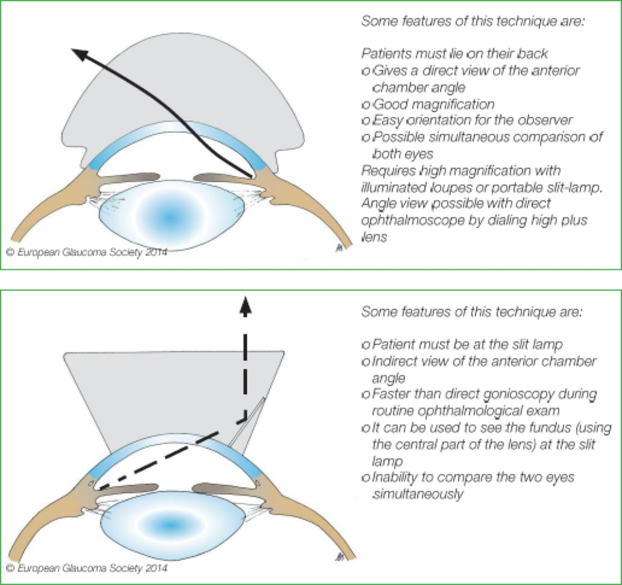 European Glaucoma Society Terminology And Guidelines For