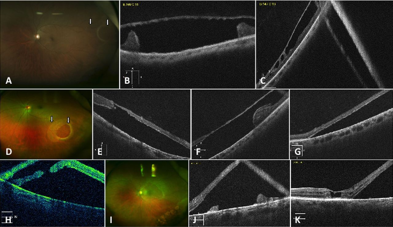 optical coherence tomography of outer retinal holes in