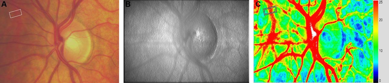 Assessment of choroidal blood flow using laser speckle