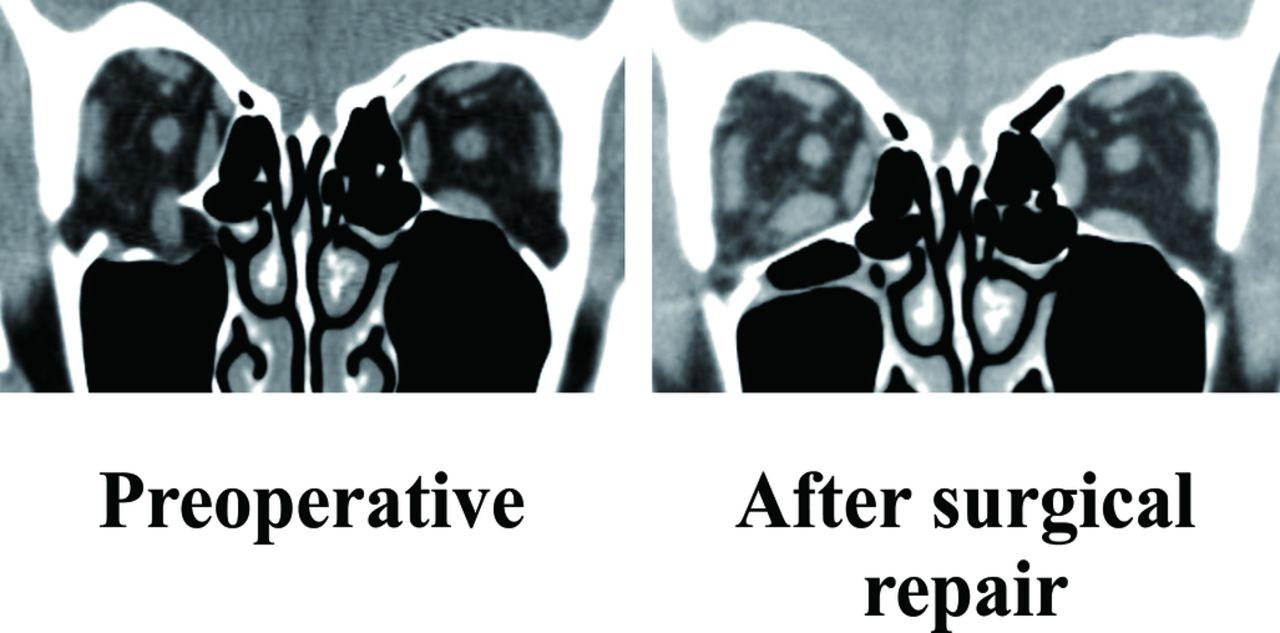 timing of postoperative ocular motility