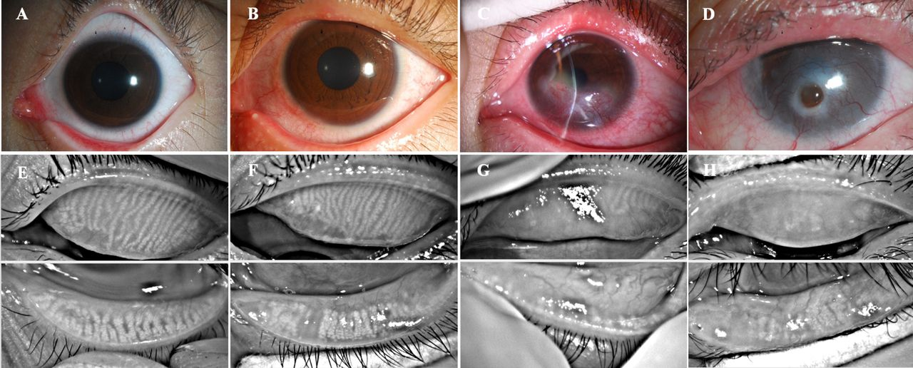 Significant Correlation Between Meibomian Gland Dysfunction And Keratitis In Young Patients With