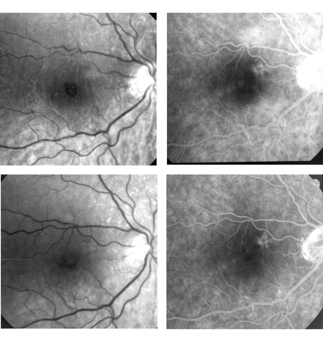 Late reopening of successfully treated macular holes