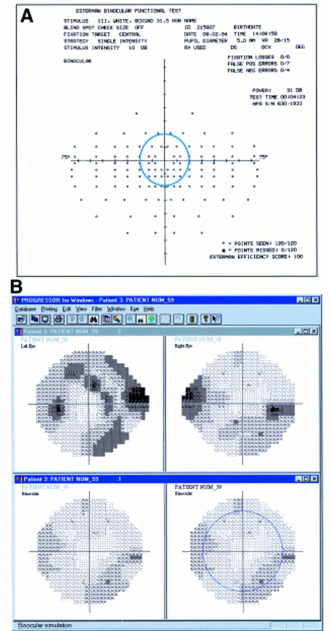 Simulating binocular visual field status in glaucoma | British