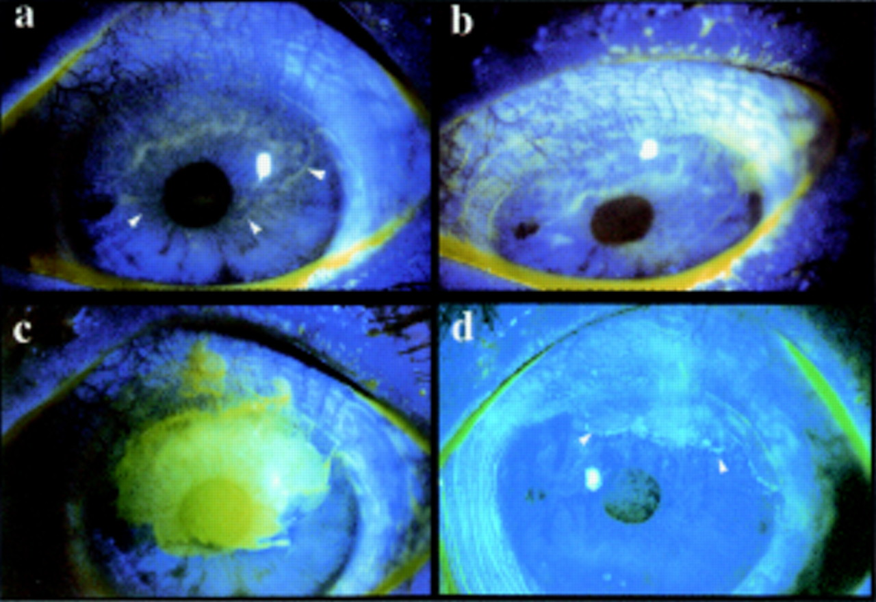 The conjunctiva in corneal epithelial wound healing