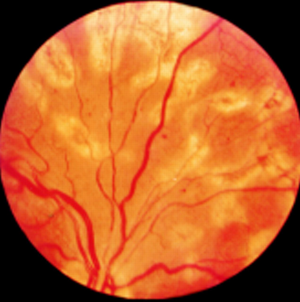 Laser photocoagulation post op Ophthalmology DuPage Medical Group