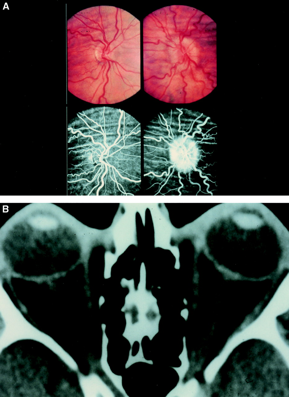Choroidal Folds And Papilloedema