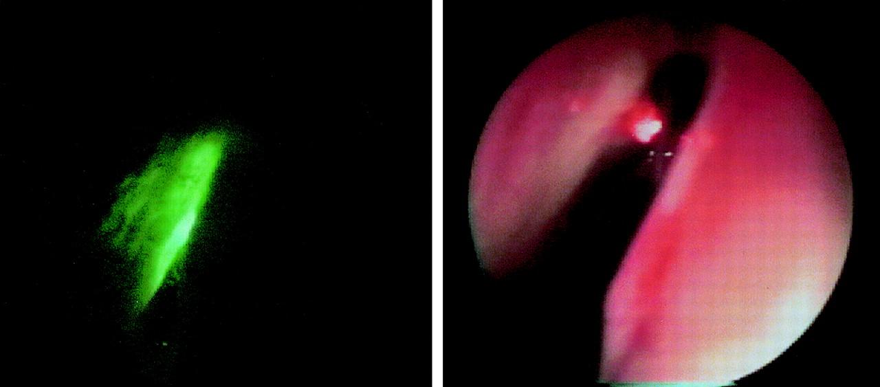 Laser Surgery Bleeding After Complications Of Green Light