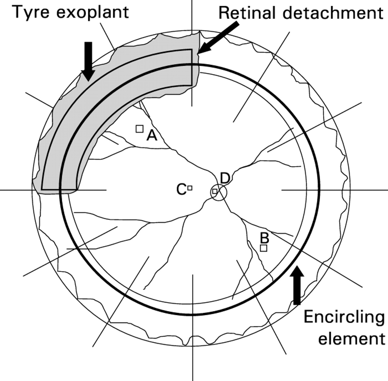 Effects of scleral buckling and encircling procedures on human optic ...