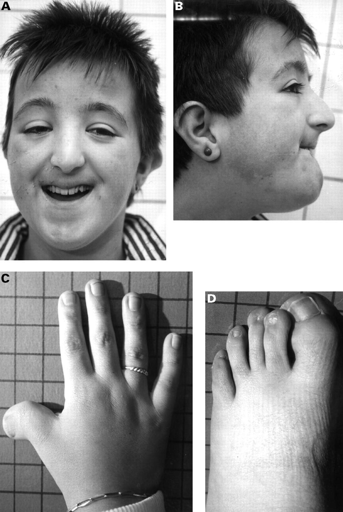 Синдром Рубинштейна — Тейби