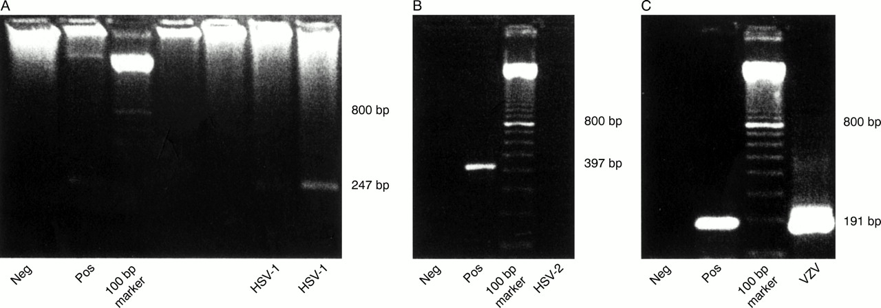 Detection of herpes simplex virus type 1, 2 and varicella zoster