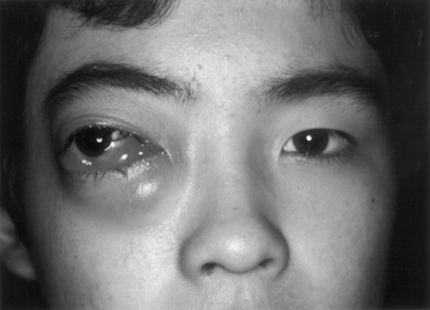 Management of orbital lymphangioma using intralesional injection of