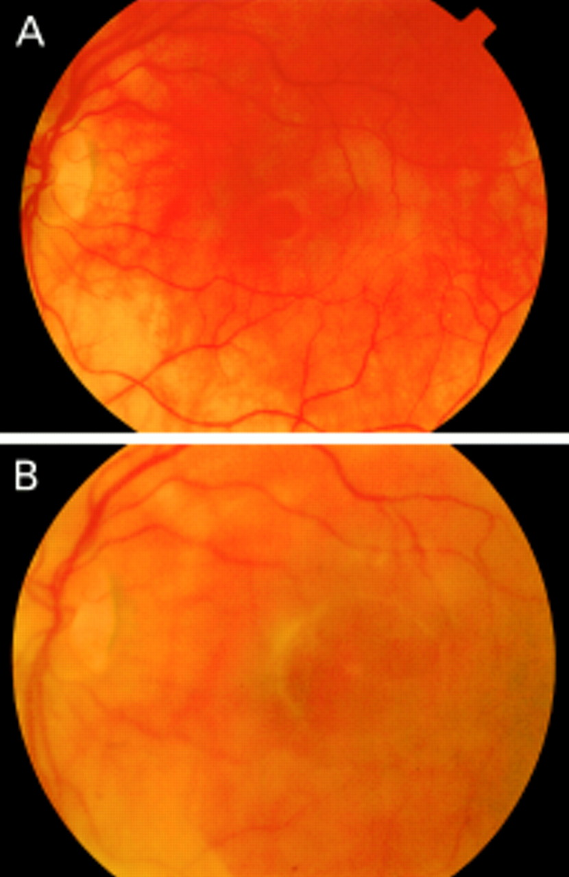 macular hole surgery using silicone oil tamponade british journal