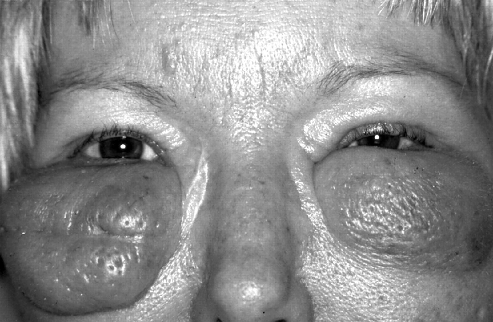 munchausen syndrome by proxy symptoms