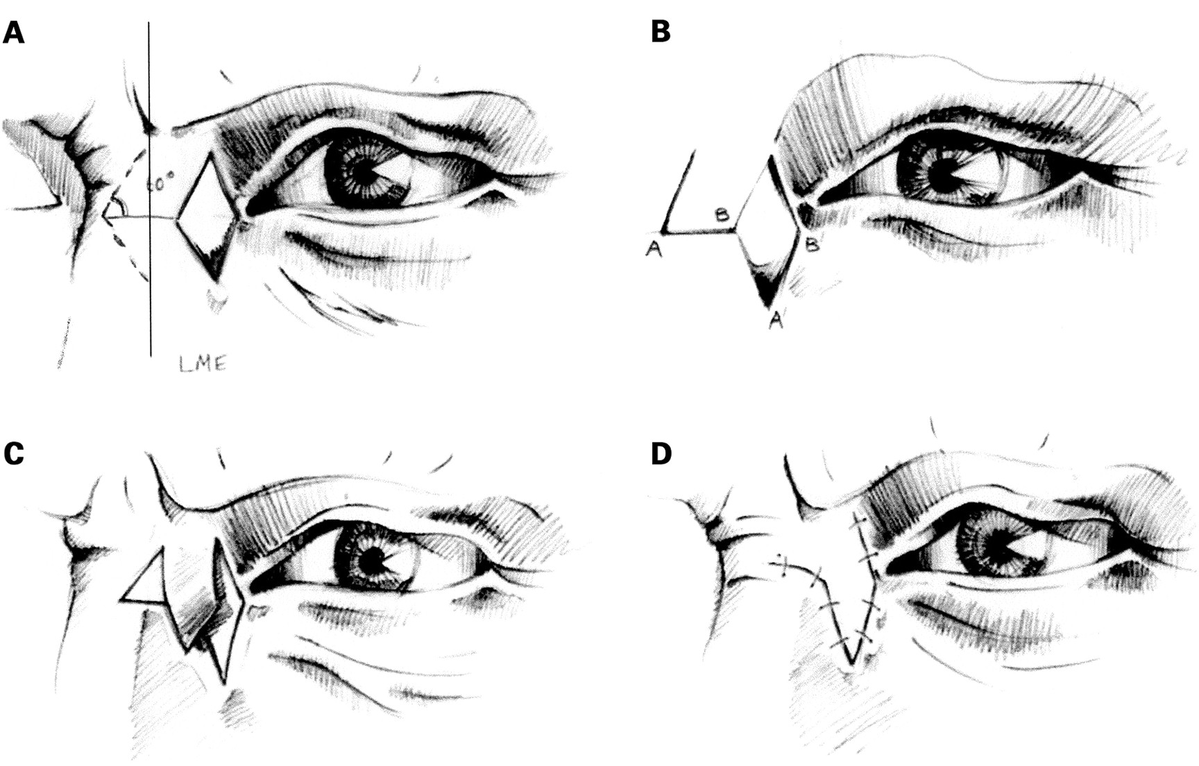 The rhomboid flap in medial canthal reconstruction
