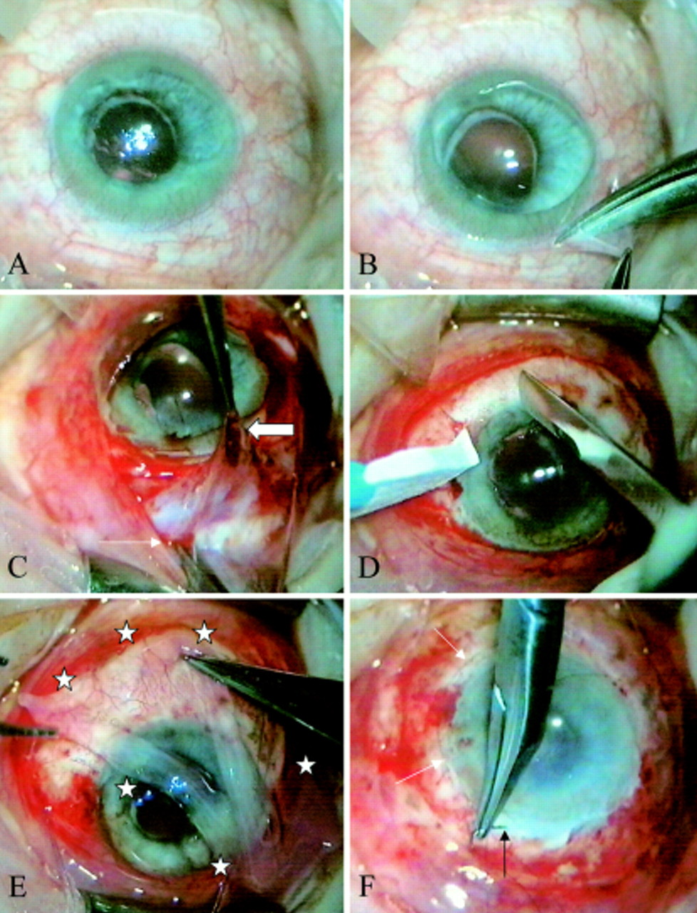 Amniotic membrane transplantation for partial limbal stem cell ...