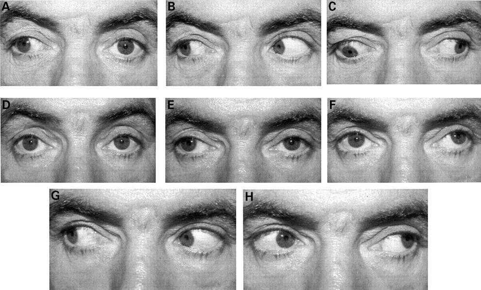 Major orbital complications of endoscopic sinus surgery | British