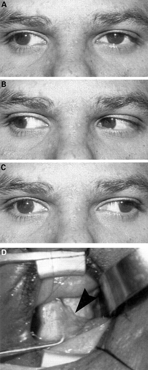 Major orbital complications of endoscopic sinus surgery | British Journal  of Ophthalmology