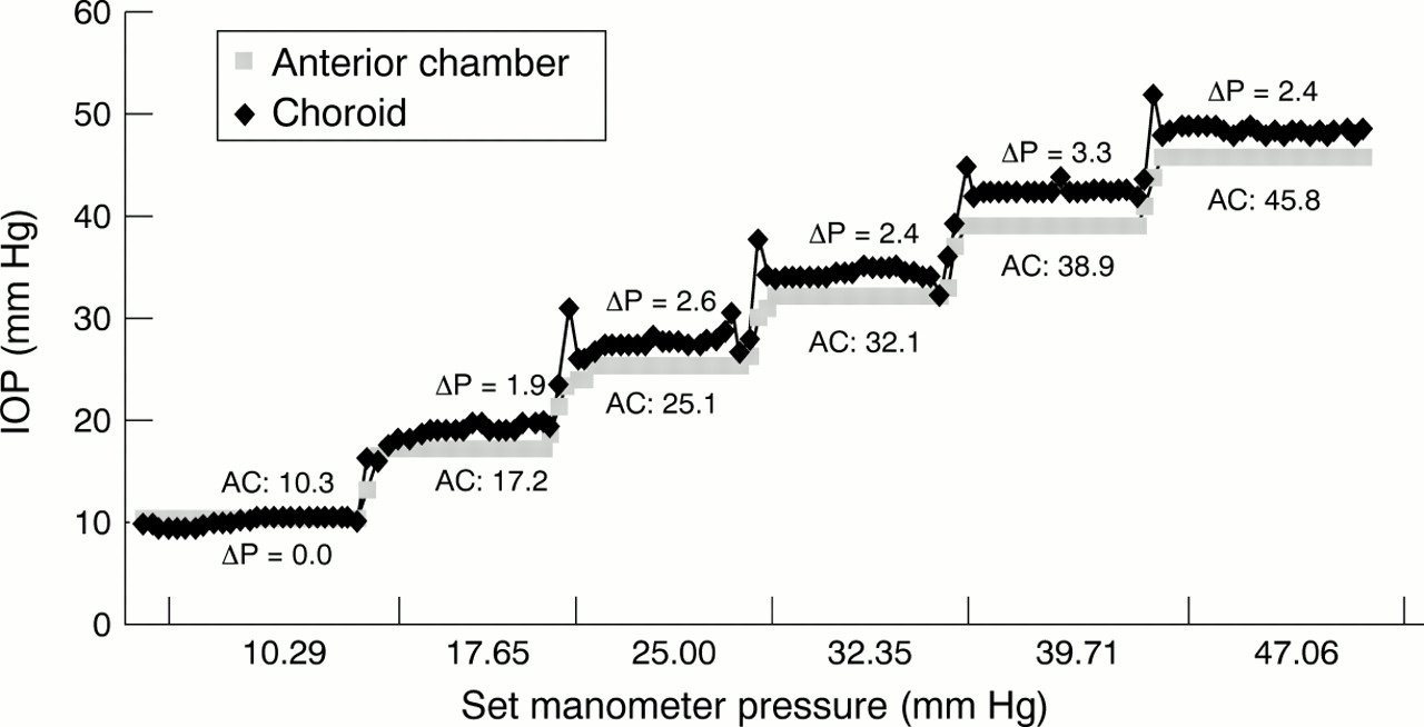Intraocular pressure measurement at the choroid surface: a
