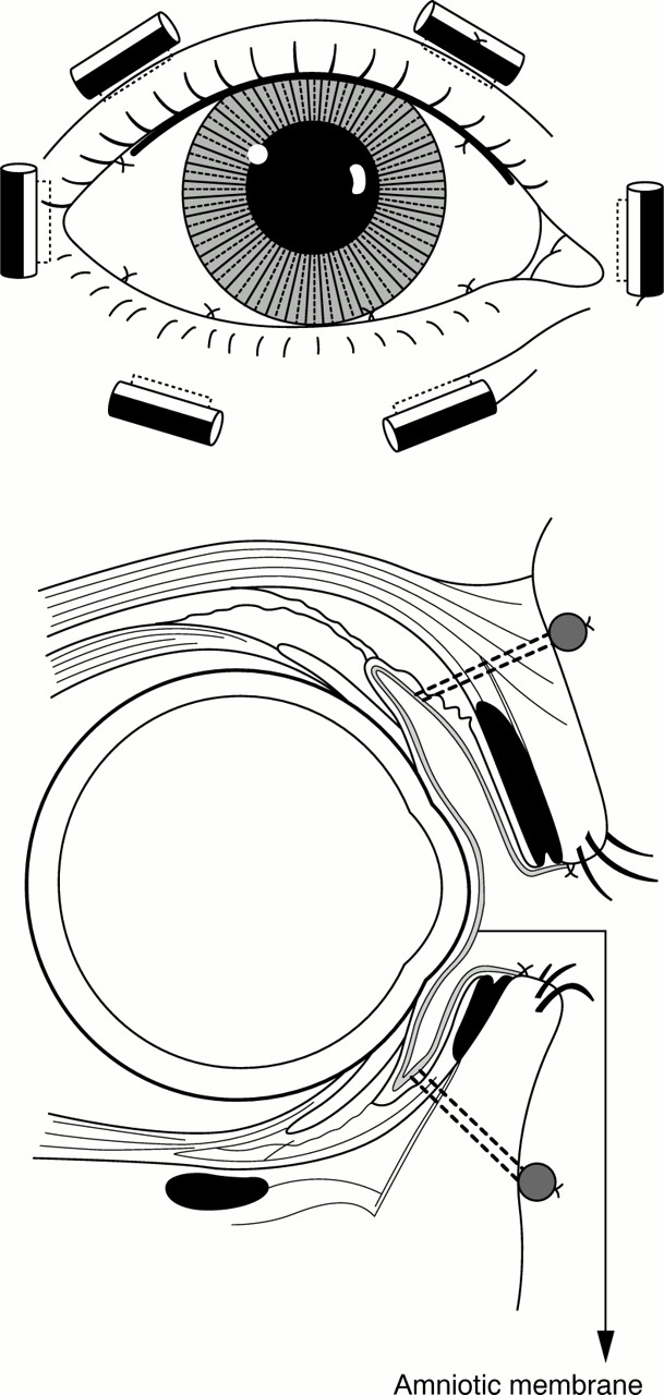 Failure of amniotic membrane transplantation in the treatment of