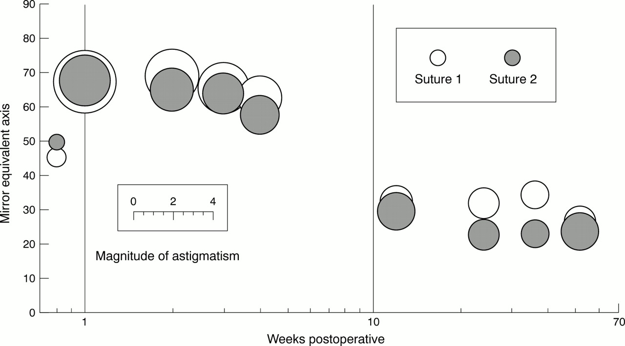 Astigmatism and the analysis of its surgical correction