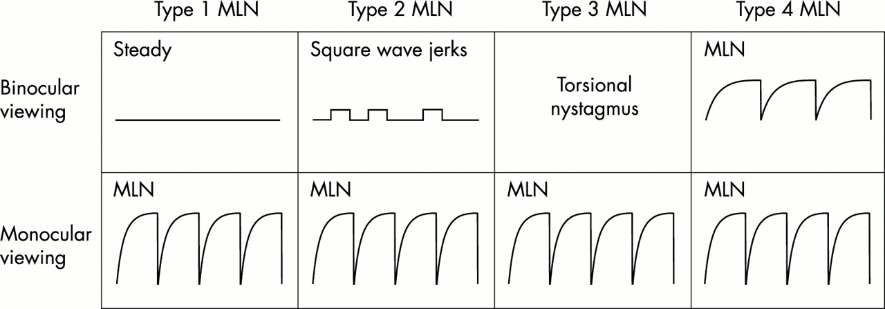 Motor and sensory characteristics of infantile nystagmus | British ...