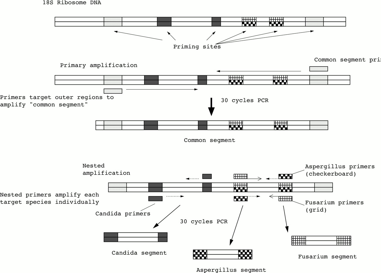 Polymerase chain reaction based detection of fungi in