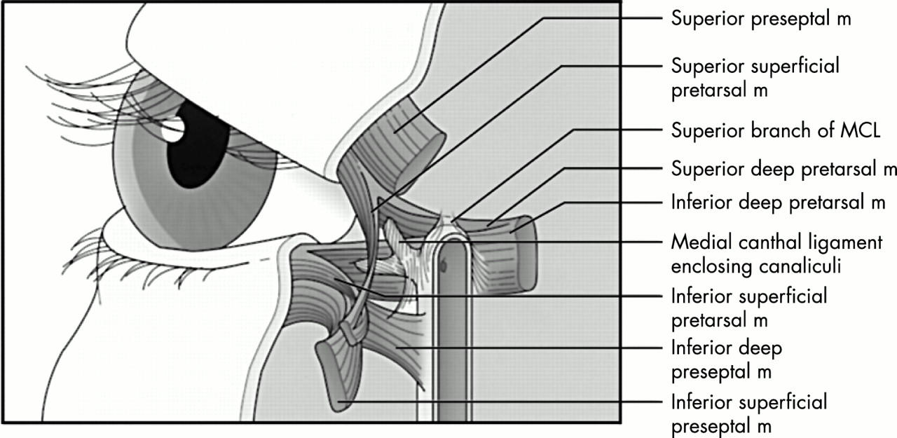 Repair of the lax medial canthal tendon | British Journal of ...