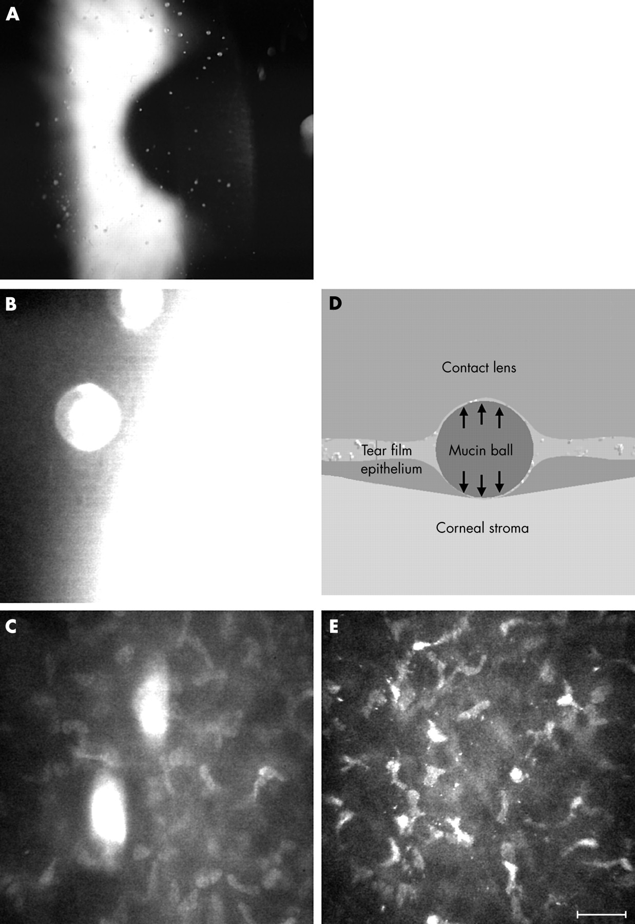 Figure 10 | British Journal of Ophthalmology