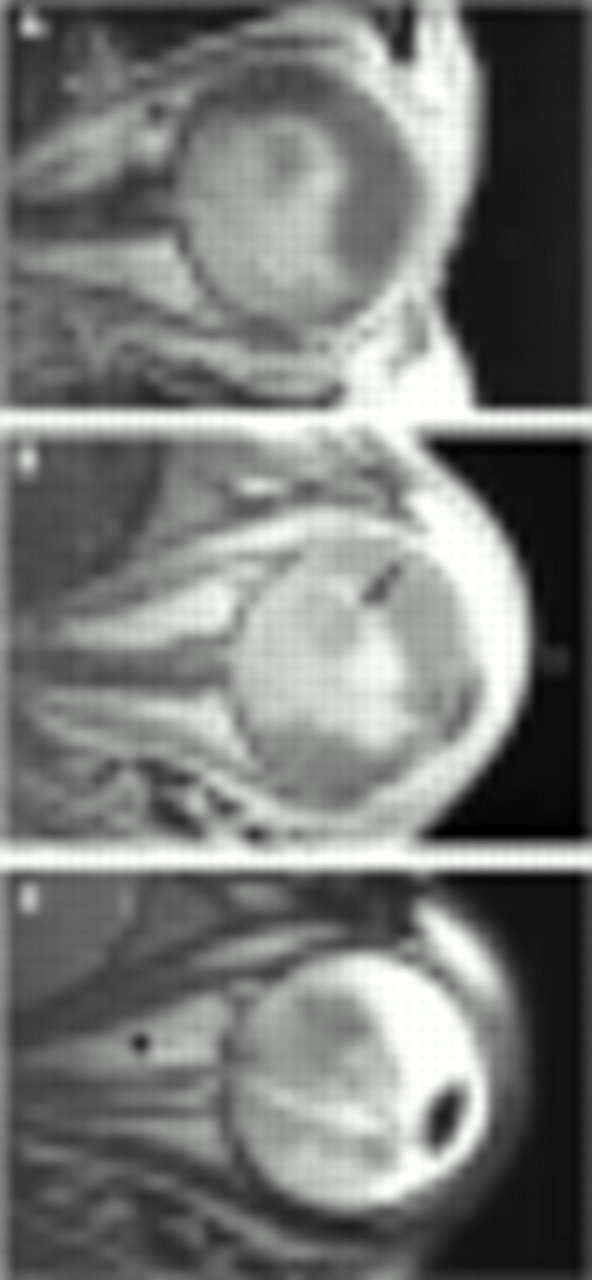 (B) Contrast enhanced T1 weighted MRI shows moderate enhancement of ...