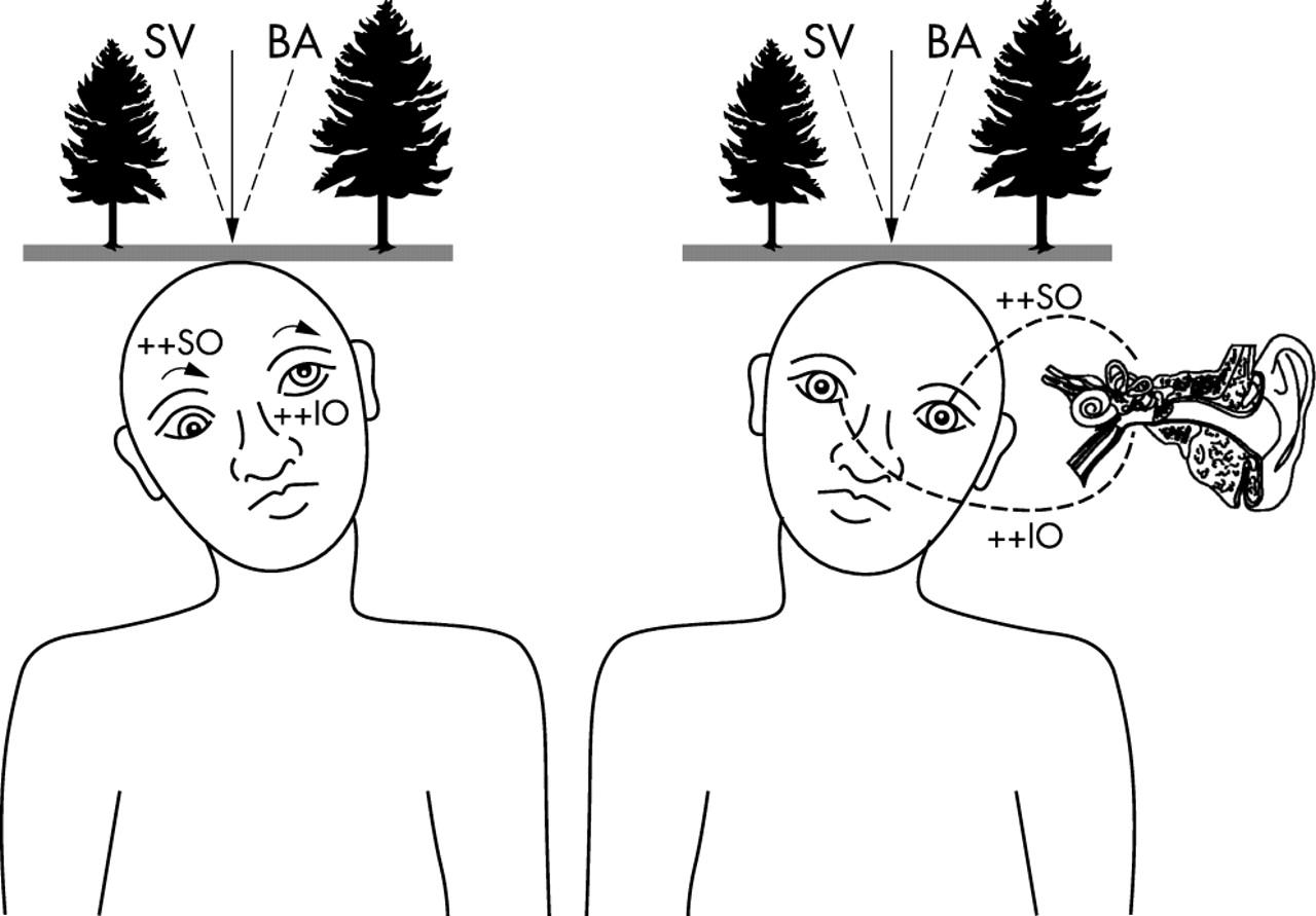 Bielschowsky+head+tilt+test