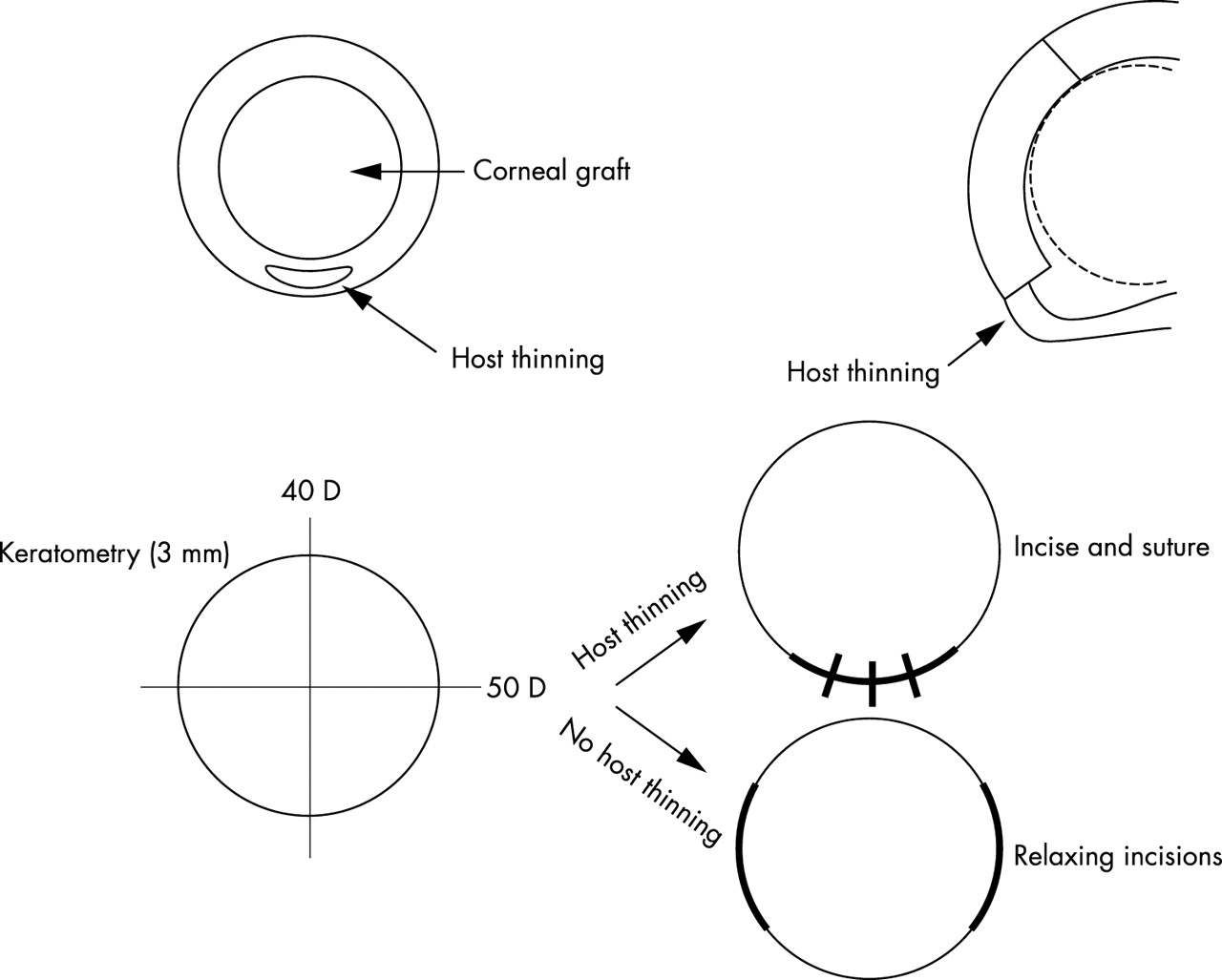 Late onset post-keratoplasty astigmatism in patients with ... on thermometer diagram, hyperopia diagram, pupil diagram, lens diagram, visual field diagram, projector diagram, prism diagram, slit lamp diagram, myopia diagram, astigmatism diagram, glaucoma diagram, conjunctiva diagram, lensometer diagram, cataract diagram, epipen diagram, kinetoscope diagram, cornea diagram, sclera diagram, phoropter diagram, colorimeter diagram,