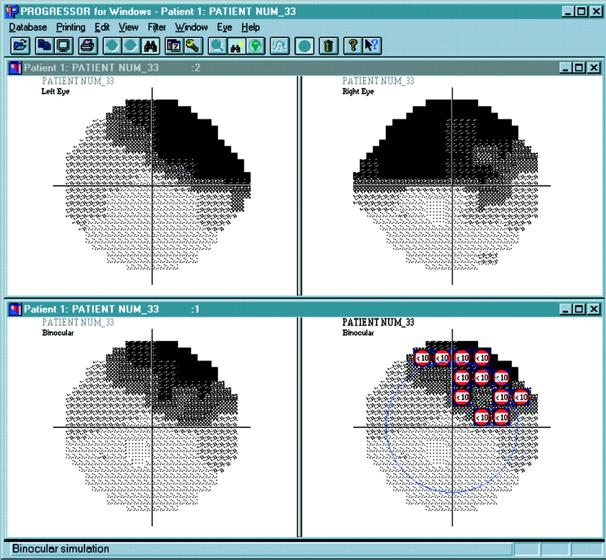 a practical approach to measuring the visual field