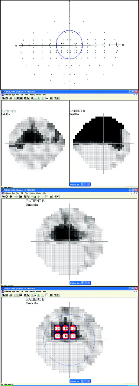 A practical approach to measuring the visual field component of