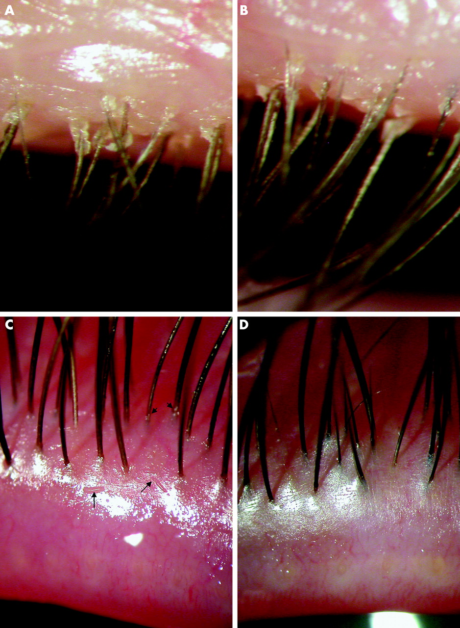 In Vitro And In Vivo Killing Of Ocular Demodex By Tea Tree Oil