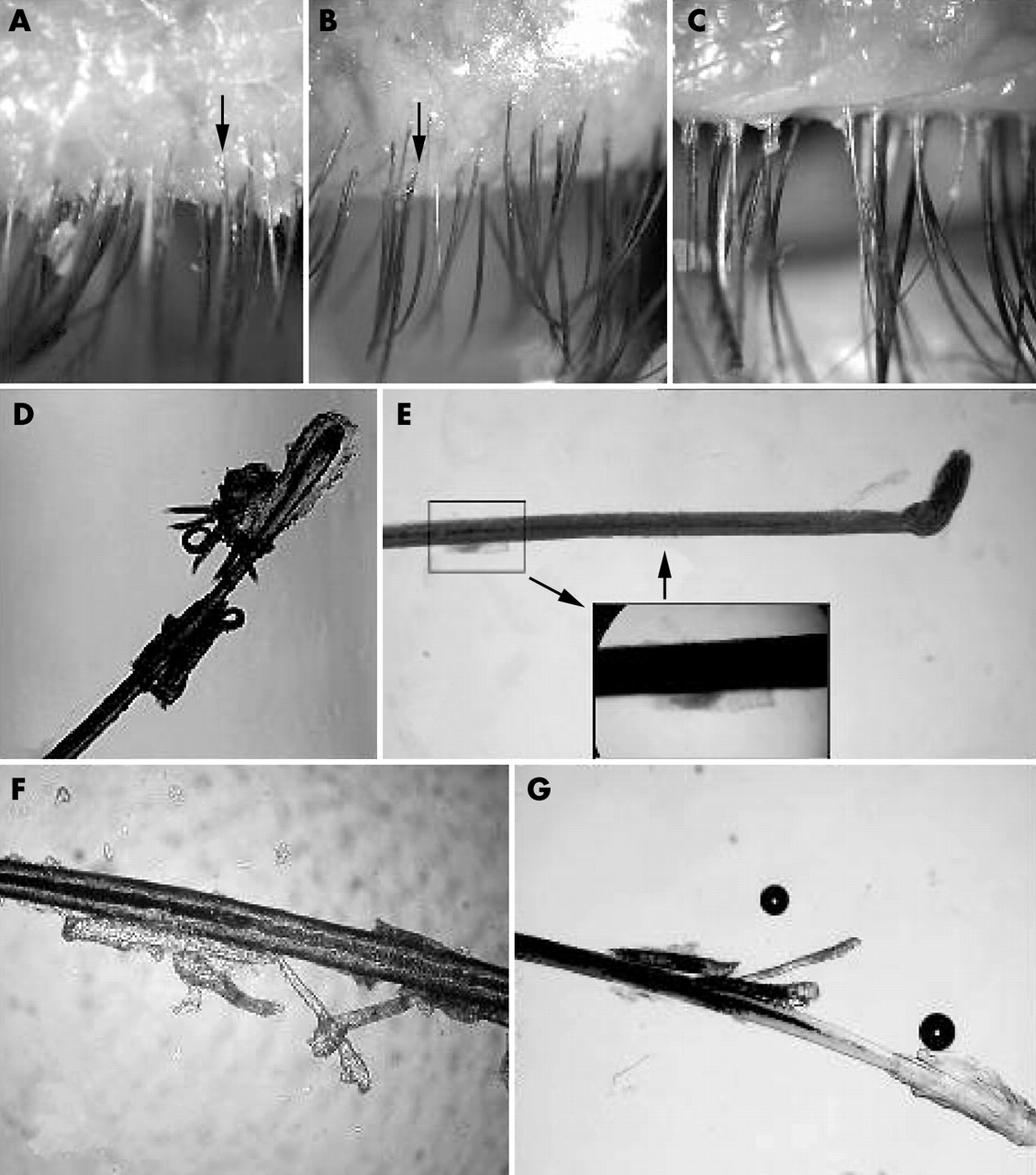 In vitro and in vivo killing of ocular Demodex by tea tree