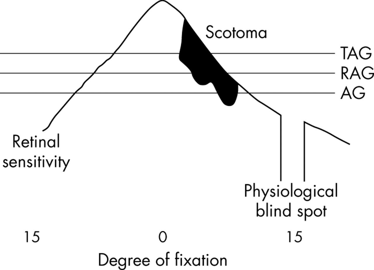 ftir spectroscopy method for hydroxychloroquine sulphate