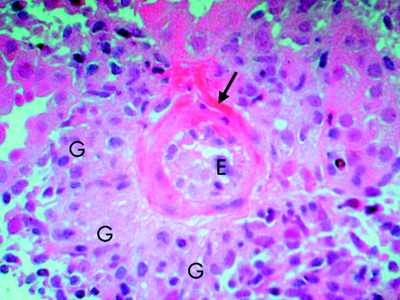 Pathology Outlines - Henoch-Schonlein purpura
