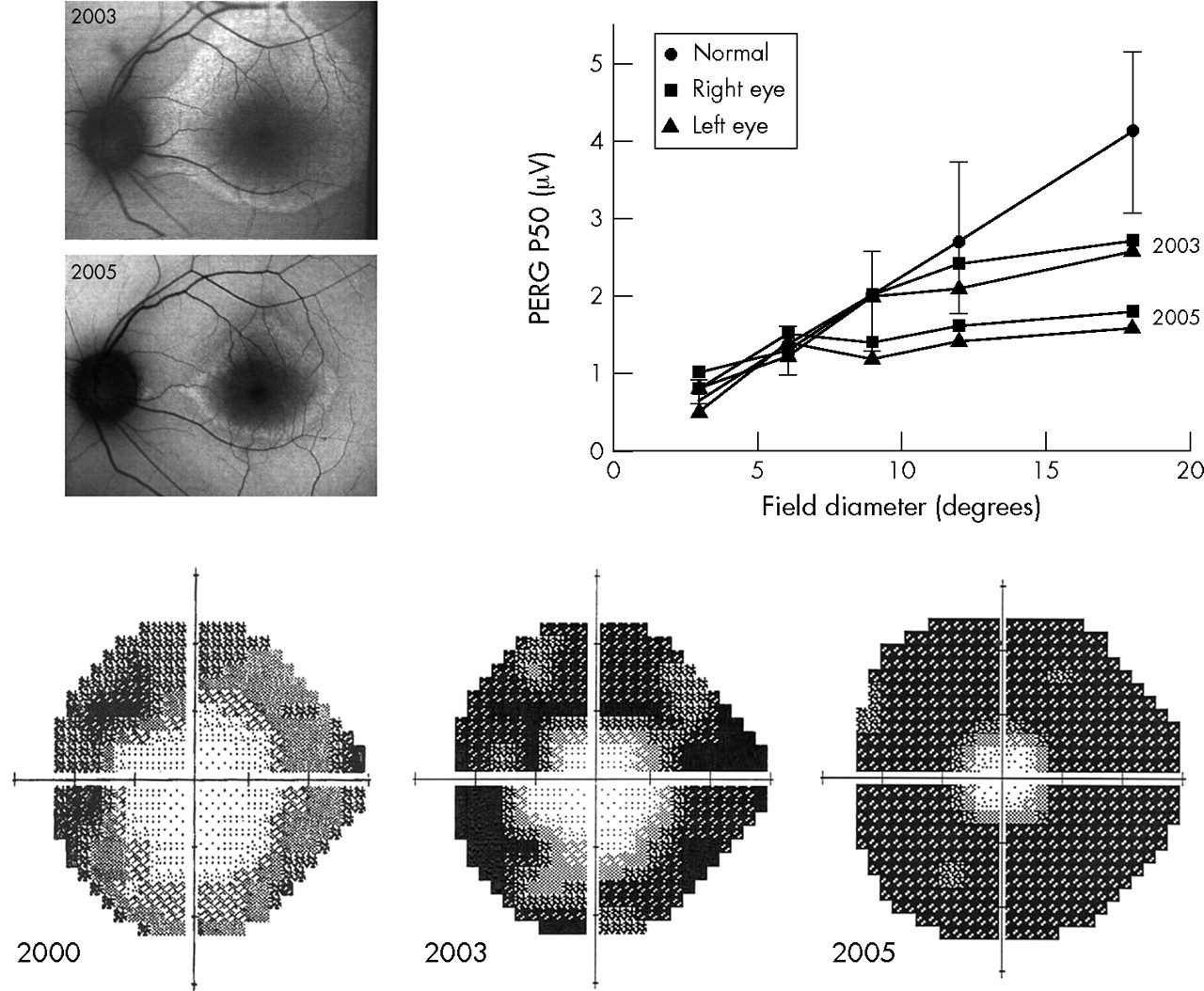 Functional characterisation and serial imaging of abnormal