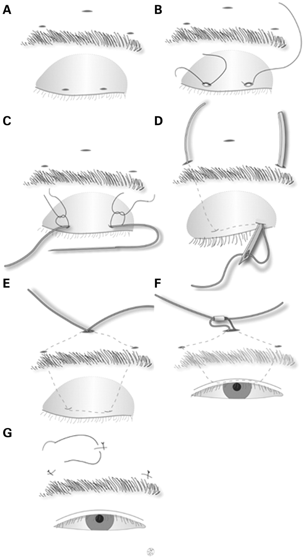 Frontalis sling operation using silicone rod for the correction of ...