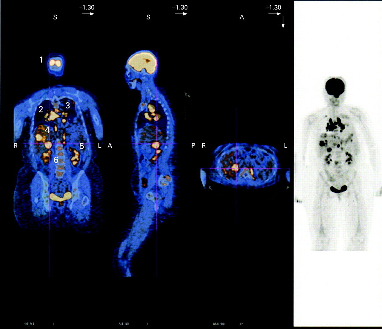 whole ct imaging for lymph node and