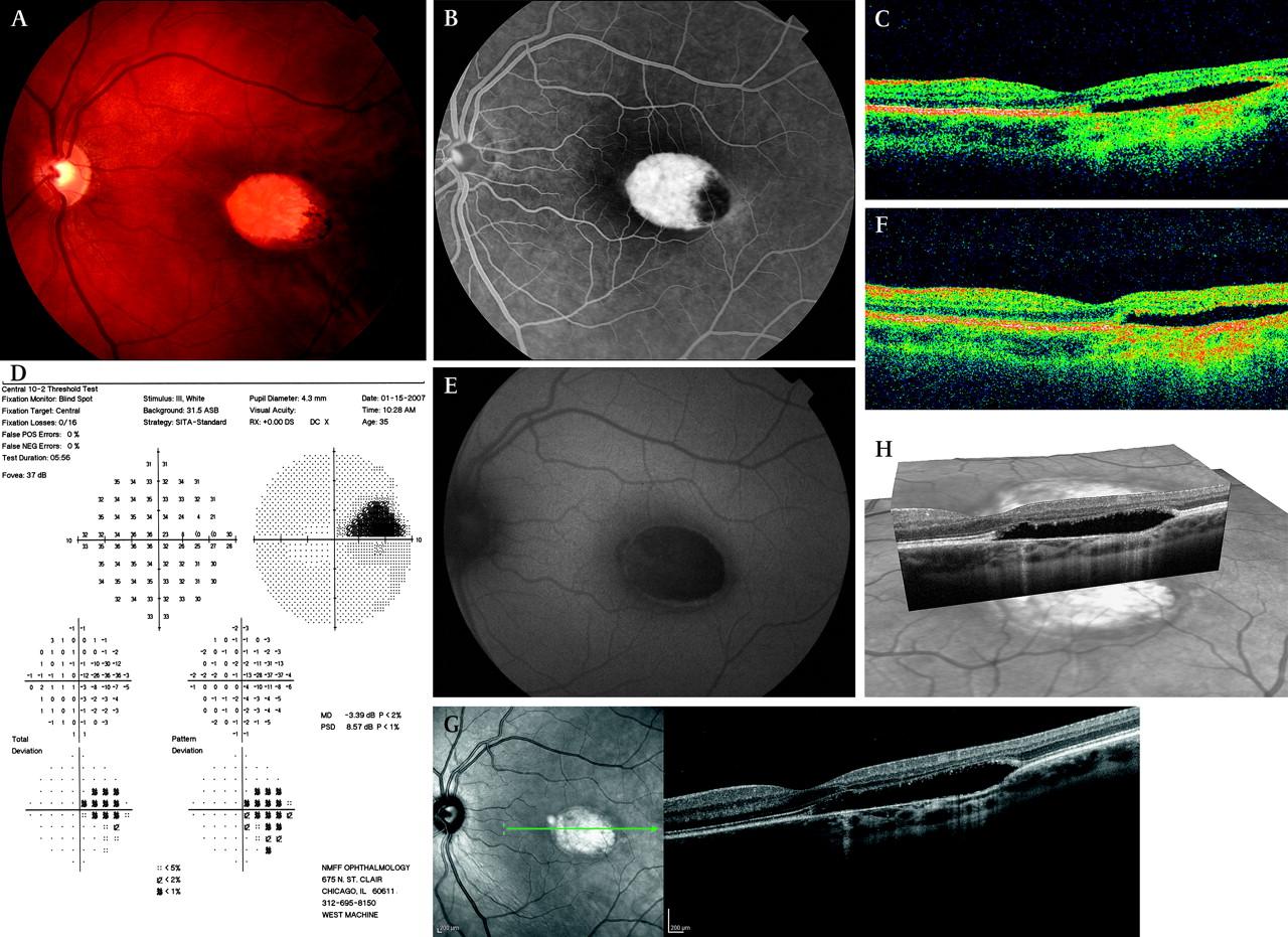 Torpedo Maculopathy British Journal Of Ophthalmology