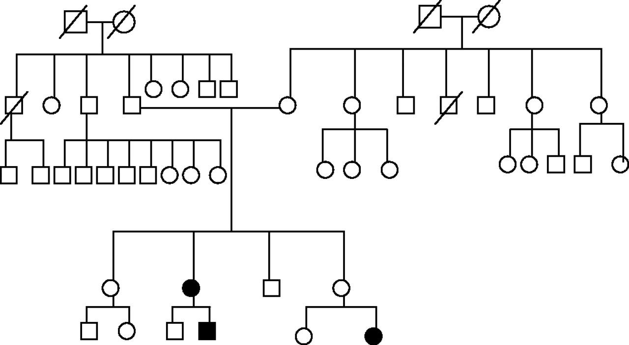 MR imaging of familial superior oblique hypoplasia
