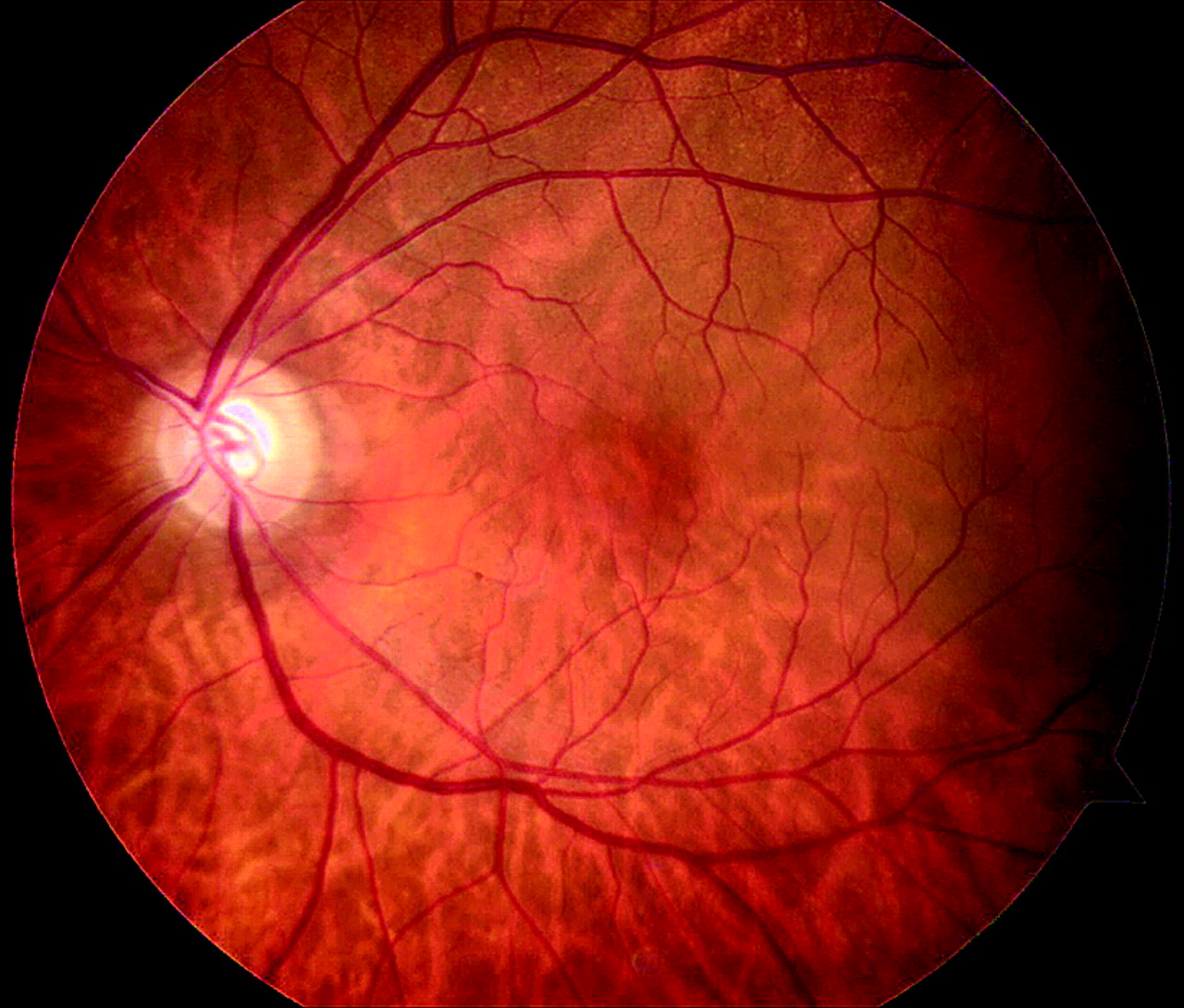 Cerulean Fundus  An Unexpected Complication Of Cataract Surgery In An Eye With Aqueous