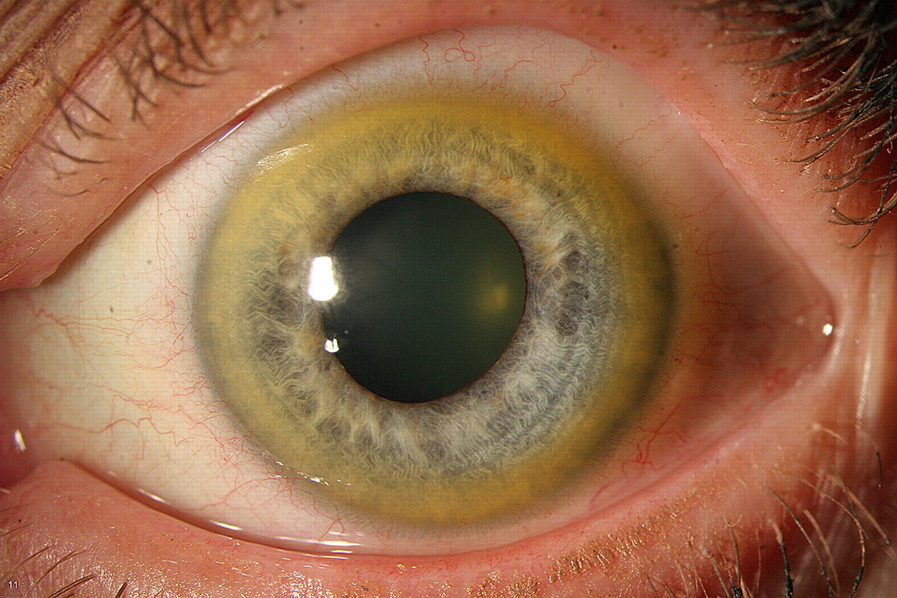 Peripheral Corneal Ring Due To Hypercarotenaemia In A Case Of Nutritional Supplement Abuse