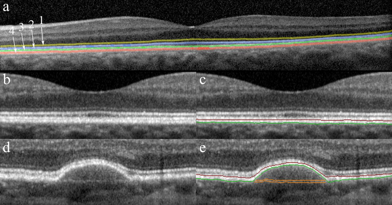 Evaluation of retinal pigment epithelium–Bruch's membrane complex