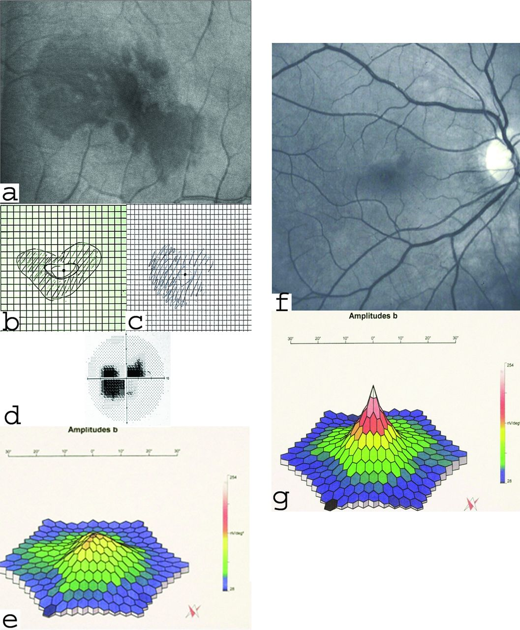 Traumatic Retinopathy Presenting As Acute Macular Neuroretinopathy