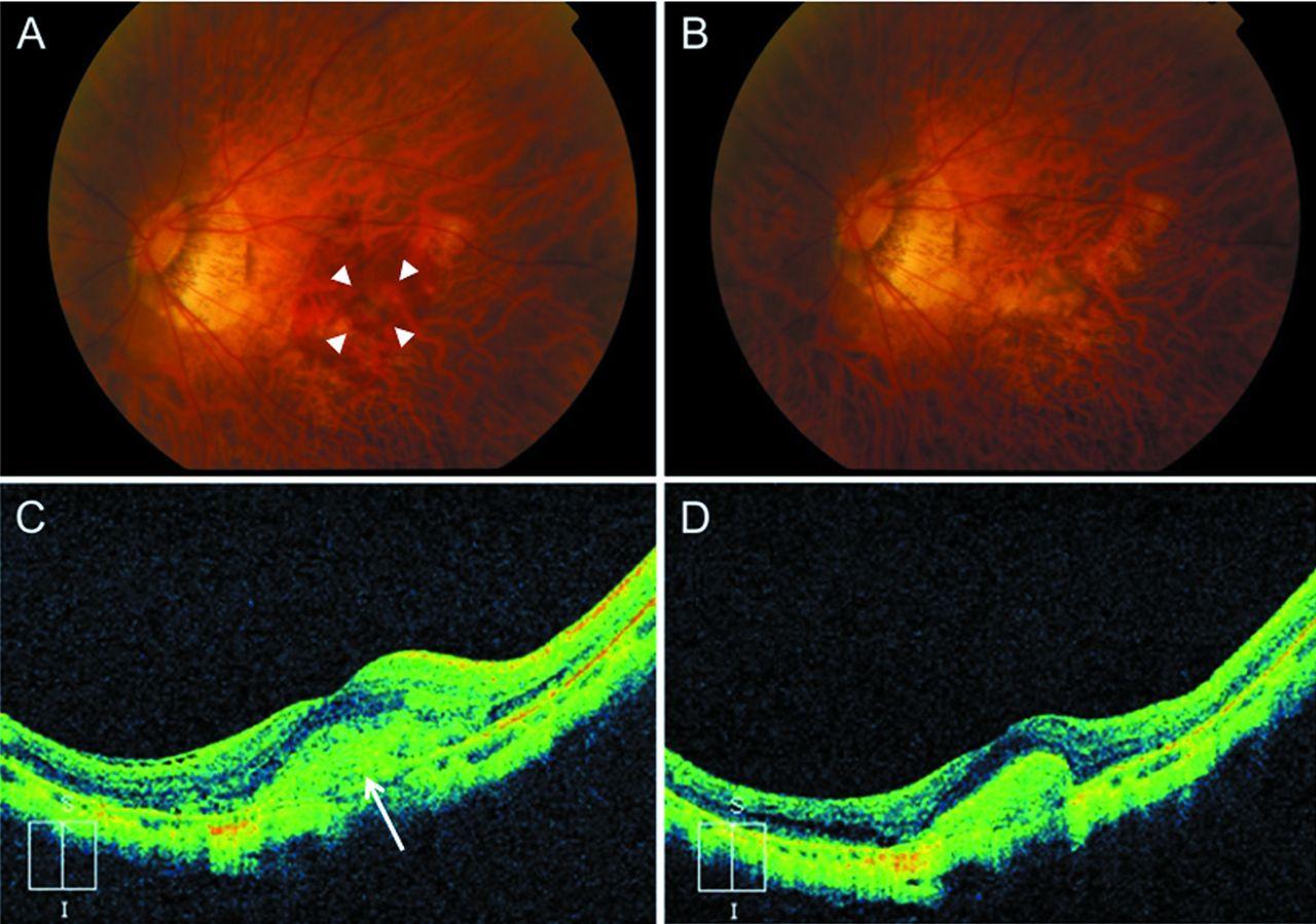 Colour therapy for myopia - Download Figure